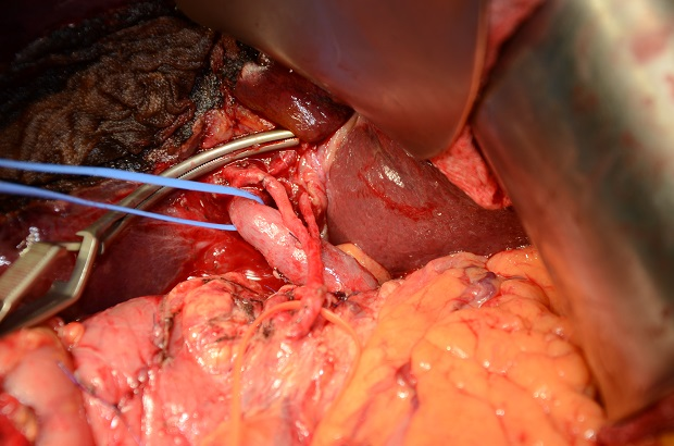 mm_gallbladder-2