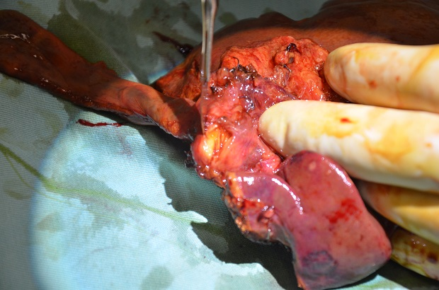 mm_gallbladder-3