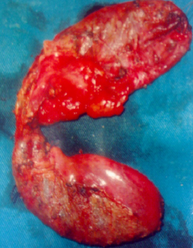 mm_gallbladder-4