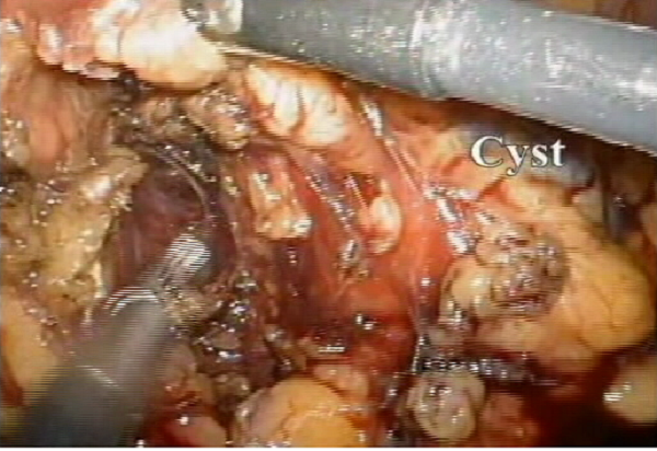mm_pancreas-3