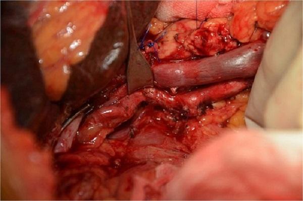 mm_pancreas-7